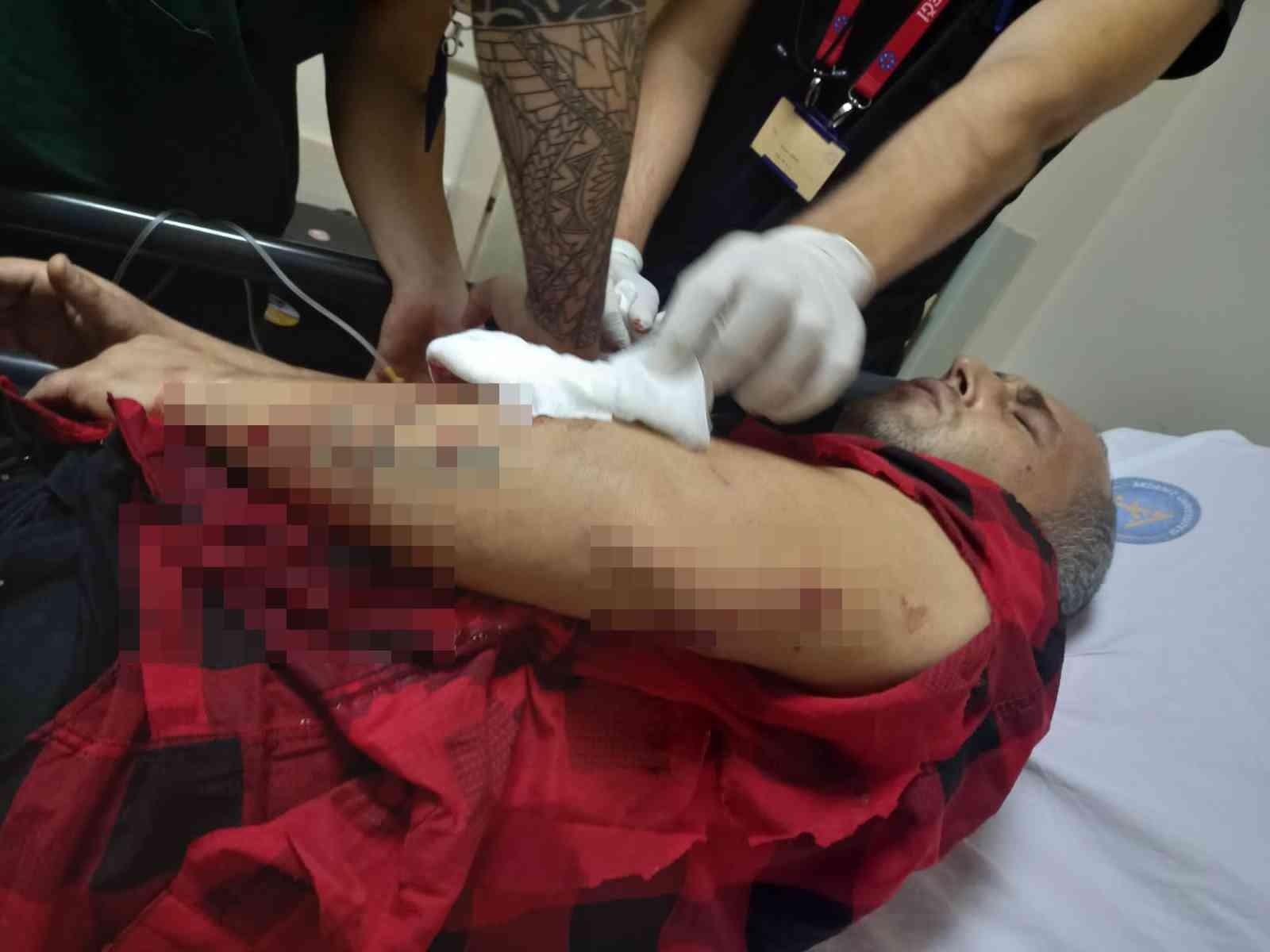 Antalya'da pitbull saldırısı